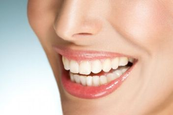 Free Smile Analysis, Laval dentist